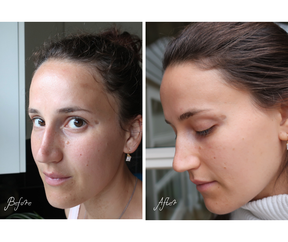 How I Got Rid Of My Hyperpigmentation In One Month Exact Skincare Steps Healthy Skin Glows